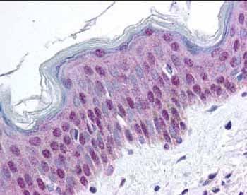 Immunohistochemistry (Formalin/PFA-fixed paraffin-embedded sections) - HMG14 (phospho S20 + S24) antibody (ab34760)