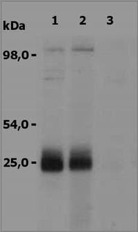 Western blot - NTAL antibody (ab36452)
