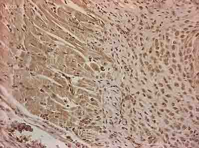 Immunohistochemistry (Formalin/PFA-fixed paraffin-embedded sections) - RGS2 antibody (ab36561)