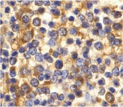 Immunohistochemistry (Formalin/PFA-fixed paraffin-embedded sections) - CCR3 antibody (ab36827)