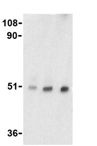 Western blot - TTC5 antibody (ab36855)