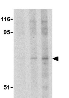Western blot - S6K antibody (ab36864)