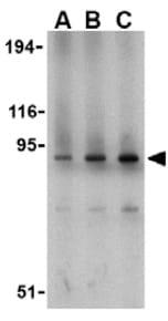Western blot - TLR1 antibody (ab37068)