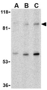 Western blot - TLR5 antibody (ab37071)