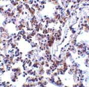 Immunohistochemistry (Formalin/PFA-fixed paraffin-embedded sections) - BAP31 antibody (ab37120)