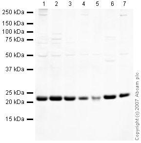 Western blot - TCTP antibody (ab37506)