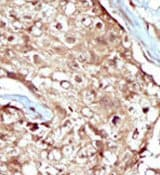 Immunohistochemistry (Formalin/PFA-fixed paraffin-embedded sections) - PAPSS2 antibody (ab37611)
