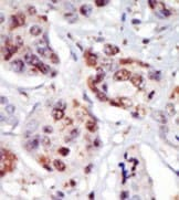 Immunohistochemistry (Formalin/PFA-fixed paraffin-embedded sections) - PIP5K2 gamma antibody (ab37642)
