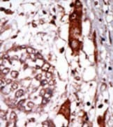 Immunohistochemistry (Formalin/PFA-fixed paraffin-embedded sections) - RACK1 antibody (ab37672)