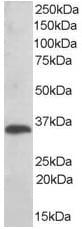 Western blot - TXNDC antibody (ab37876)