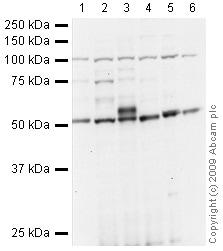 Western blot - JHDM1D antibody (ab37905)