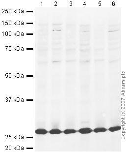 Western blot - TIGAR antibody (ab37910)