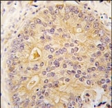 Immunohistochemistry (Formalin/PFA-fixed paraffin-embedded sections) - CaMKI antibody - Carboxyterminal end (ab38002)