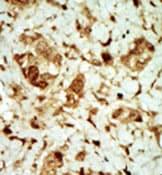 Immunohistochemistry (Formalin/PFA-fixed paraffin-embedded sections) - PRKAG3 antibody (ab38228)