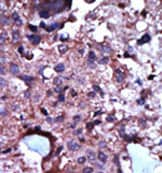 Immunohistochemistry (Formalin/PFA-fixed paraffin-embedded sections) - PKLR antibody (ab38240)