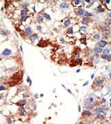Immunohistochemistry (Formalin/PFA-fixed paraffin-embedded sections) - NYREN18 antibody (ab38438)