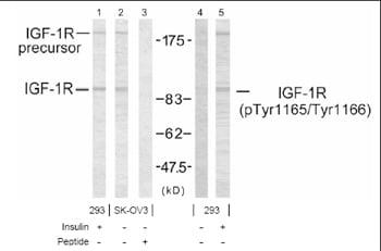Western blot - IGF1 Receptor (phospho Y1165 + Y1166) antibody (ab38465)