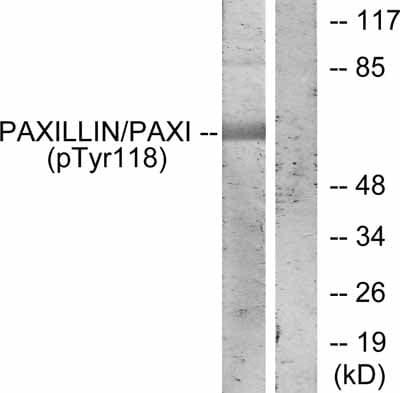 Western blot - Paxillin (phospho Y118) antibody (ab38466)
