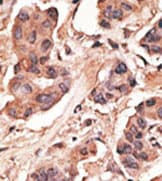Immunohistochemistry (Formalin/PFA-fixed paraffin-embedded sections) - MAGE 1 antibody (ab38486)
