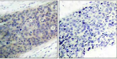 Immunohistochemistry (Paraffin-embedded sections) - LIM kinase 2 (phospho T505) antibody (ab38499)