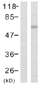 Western blot - LIM kinase 2 (phospho T505) antibody (ab38499)
