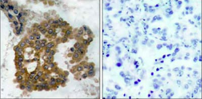 Immunohistochemistry (Formalin/PFA-fixed paraffin-embedded sections) - Anti-AKT2 (phospho S474) antibody (ab38513)