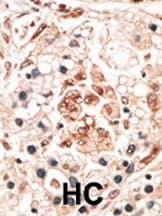 Immunohistochemistry (Formalin/PFA-fixed paraffin-embedded sections) - Hippocalcin antibody (ab38595)