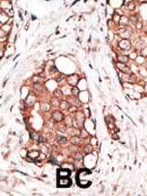 Immunohistochemistry (Formalin/PFA-fixed paraffin-embedded sections) - VILIP3 antibody (ab38596)