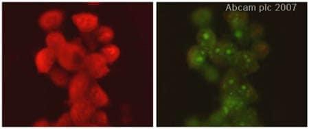 Immunocytochemistry/ Immunofluorescence - SUV39H1 antibody (ab38637)
