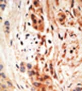 Immunohistochemistry (Formalin/PFA-fixed paraffin-embedded sections) - PHO1 antibody (ab38641)