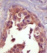 Immunohistochemistry (Formalin/PFA-fixed paraffin-embedded sections) - SMURF1  antibody (ab38866)