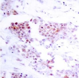 Immunohistochemistry (Paraffin-embedded sections) - MEF2A (unmodified T319) antibody (ab39420)