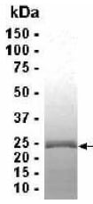 SDS-PAGE - CRIP2 protein (ab39506)