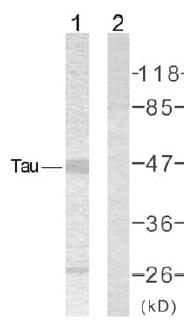 Western blot - Tau antibody (ab39524)