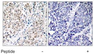 Immunohistochemistry (Paraffin-embedded sections) - c-Myc antibody (ab39688)