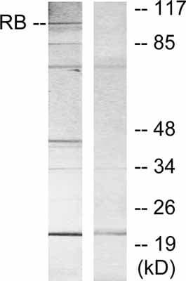 Western blot - Rb antibody (ab39689)