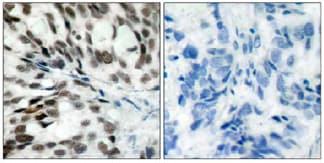 Immunohistochemistry (Paraffin-embedded sections) - Rb antibody (ab39690)