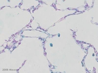 Immunohistochemistry (Frozen sections) - MURF1 antibody (ab4125)