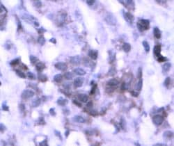Immunohistochemistry (Formalin-fixed paraffin-embedded sections) - NSD3 antibody (ab4514)