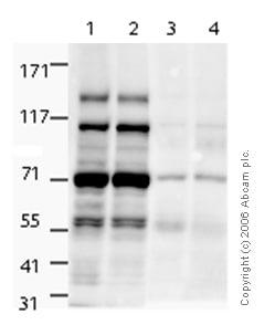 Western blot - NSD3 antibody (ab4514)