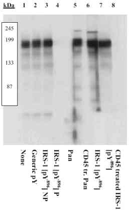 Western blot - IRS1 (phospho Y896) antibody (ab4873)