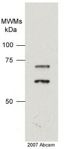 Western blot - Lamin A + C antibody [JOL2] (ab40567)