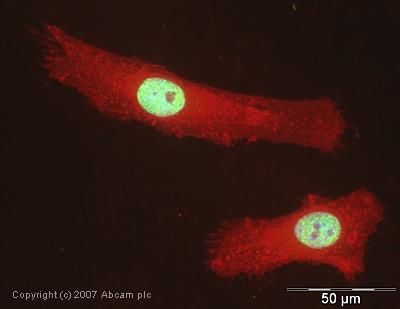 Immunocytochemistry/ Immunofluorescence - U1A antibody (ab40689)