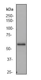 Western blot - PAK3 antibody [EP797Y] (ab40808)