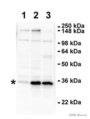 Western blot - RPS6 antibody (ab40820)