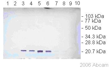 Western blot - Dengue Virus prM glycoprotein antibody [DM1] (ab41473)