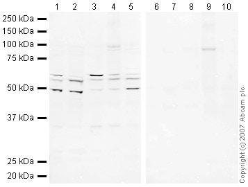 Western blot - eIF2B3 antibody (ab41551)
