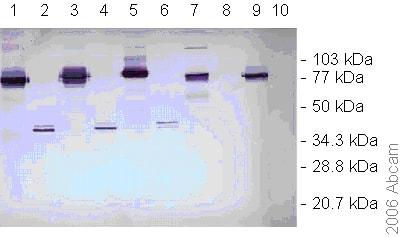 Western blot - Dengue Virus NS1 glycoprotein antibody [DN3] (ab41616)