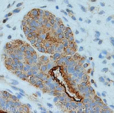 Immunohistochemistry (Formalin/PFA-fixed paraffin-embedded sections) - Ezrin antibody (ab41672)