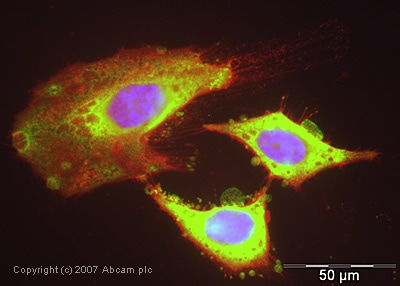 Immunocytochemistry/ Immunofluorescence - Cofilin antibody (ab42824)